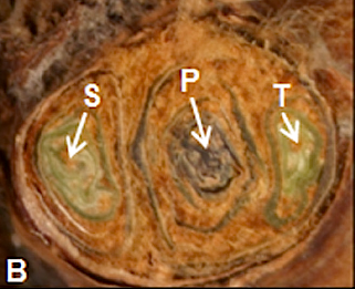 A cross section of a wine grape bud, showing the primary (P), secondary (S) and tertiary (T) buds within. This image lifted with gratitude from http://plant-pest-advisory.rutgers.edu/?p=8311